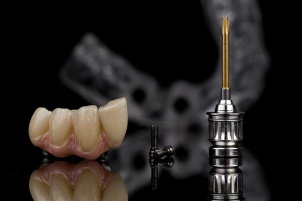 teeth prosthetics